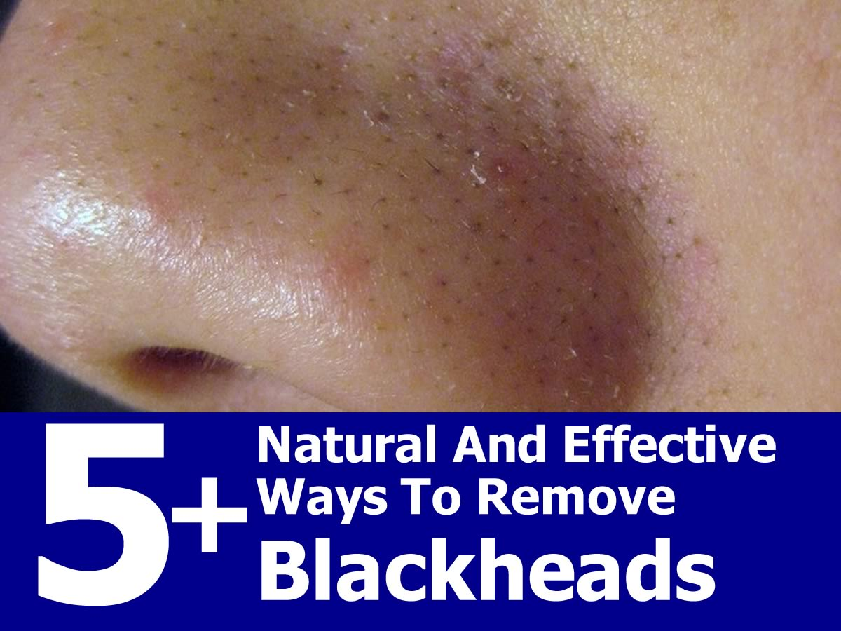 Natural Remedies To Remove Blackheads From Nose
