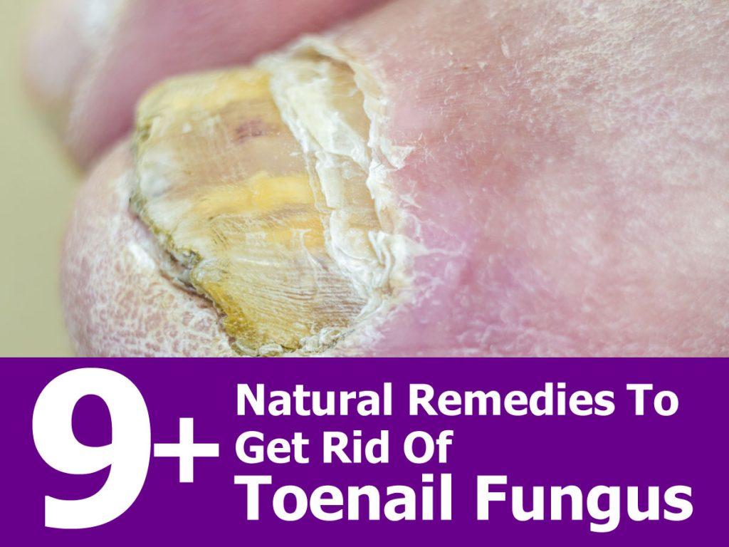 Natural Way To Get Rid Of Fingernail Fungus