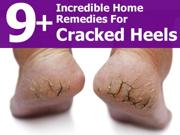 Treatment for Cracked Heels — Moisture - Foot Health ...